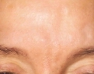 Glabella after