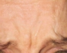 Glabella before