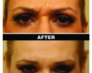 Botox treatment of glabella