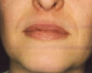Dermal Fillers Before