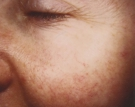 Facial Veins Before