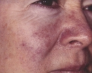 Facial Veins Before