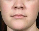 isolaz-acne-treatment-after