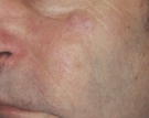 Laser Vein Removal After