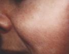 facial-veins-2ed