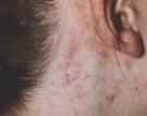 facial-veins-ear1ed