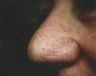 facial-veins-nose-2ed