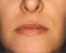 Maturing Face After