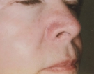 Rosacea After