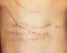 Scars Before