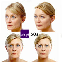 before and after softlift 50s