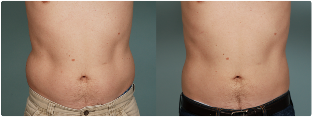 coolsculpting before and after love handles