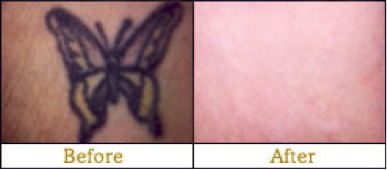 before and after laser tattoo removal Edmonton