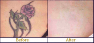 laser tattoo removal 3