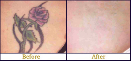 tattoo removal before and after Edmonton