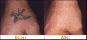 laser tattoo removal 4