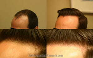 hair-transplant-surgery-photo-left-171243