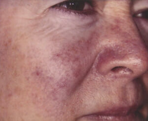 facial veins rosacea