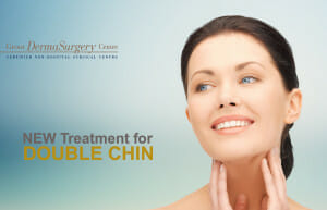 belkyra treatment for double chin best non-surgical