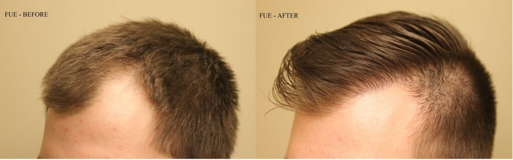 FUE results nakatsui