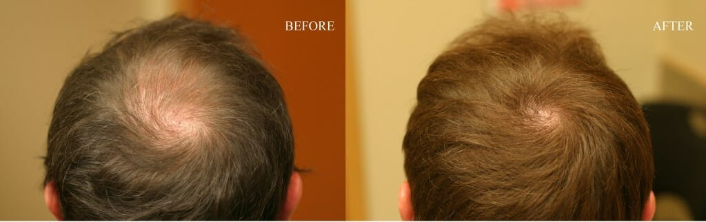 hair loss surgery crown thomas nakatsui