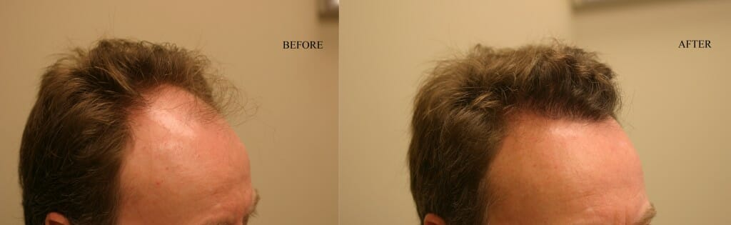 frontal scalp hair restoration edmonton