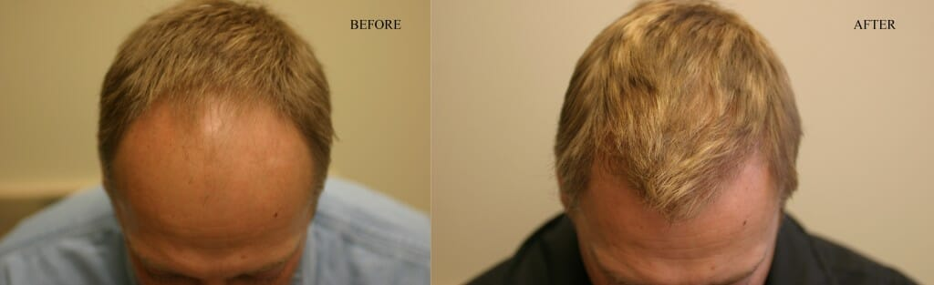 hair transplant surgery thomas nakatsui