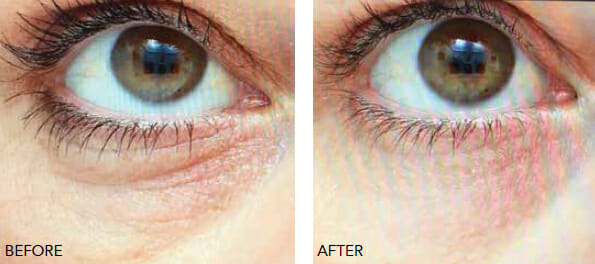 Redensity eyelid rejuvenation