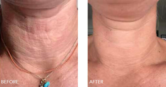 Redensity neck rejuvenation
