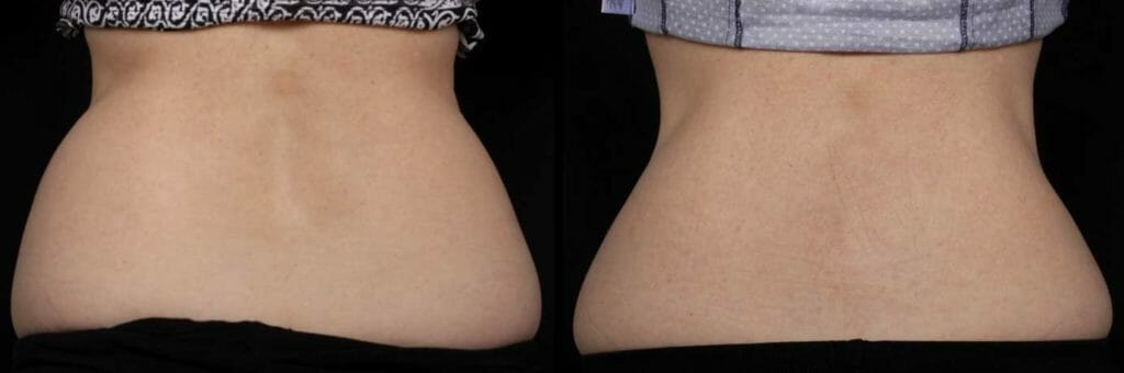 coolsculpting hips before and after