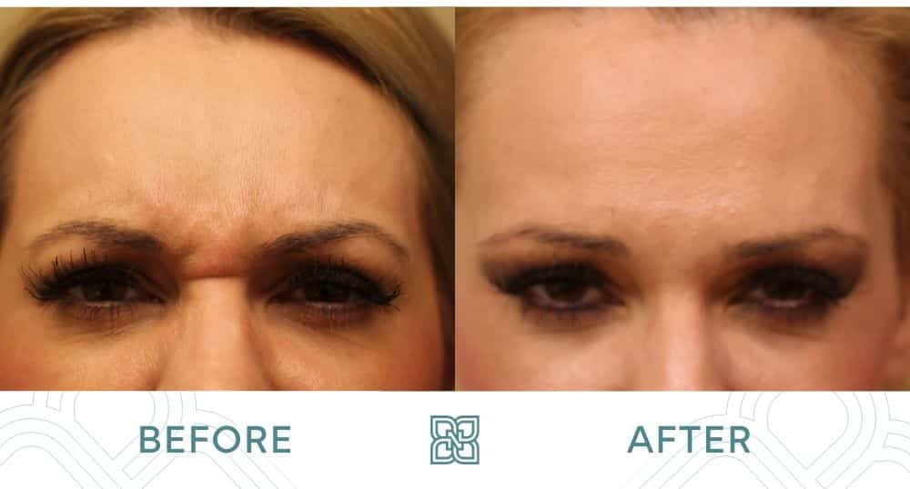 Botox frown lines edmonton before and after