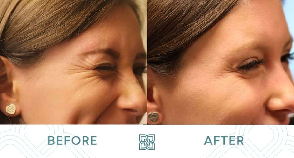 botox smile lines before and after