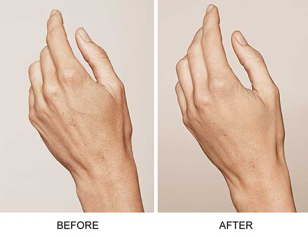 skin boosters RESTYLANE hands