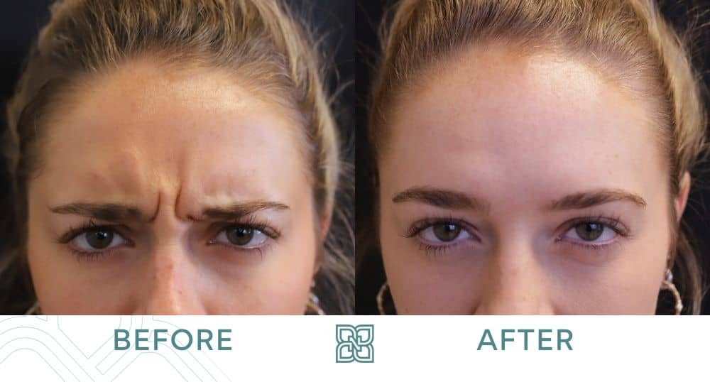 best Botox glabella Edmonton before and after