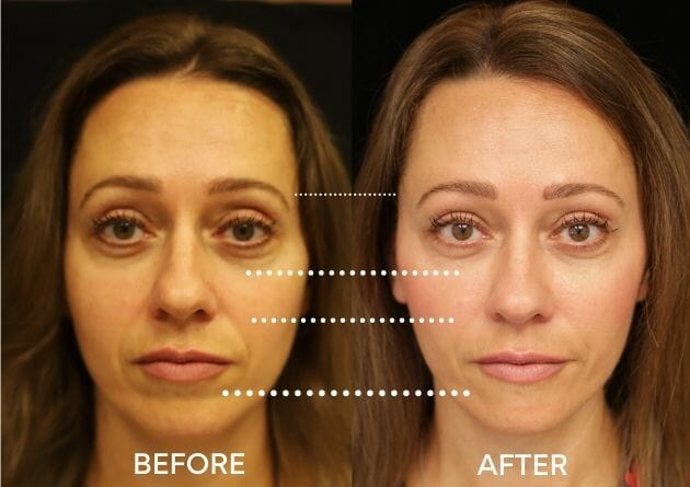cheek and temple fillers before and after juvederm