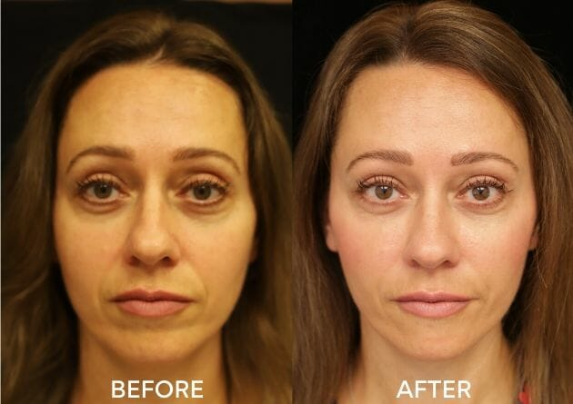 juvederm facial fillers before and after