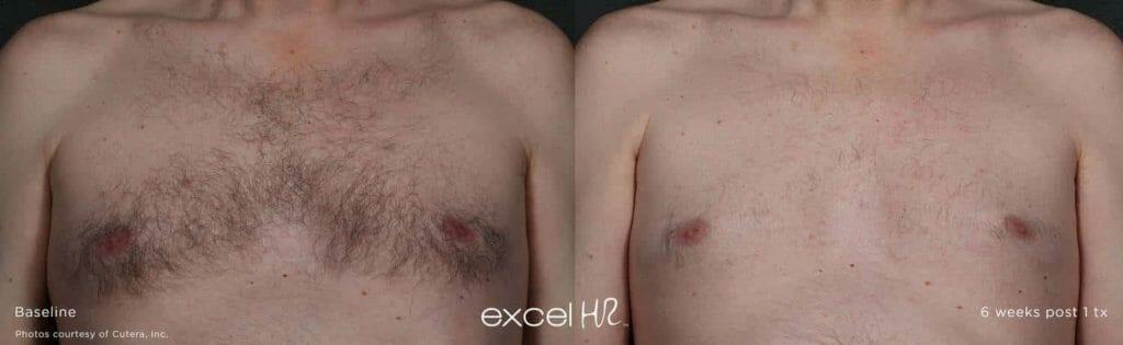 excel HR laser hair removal Edmonton