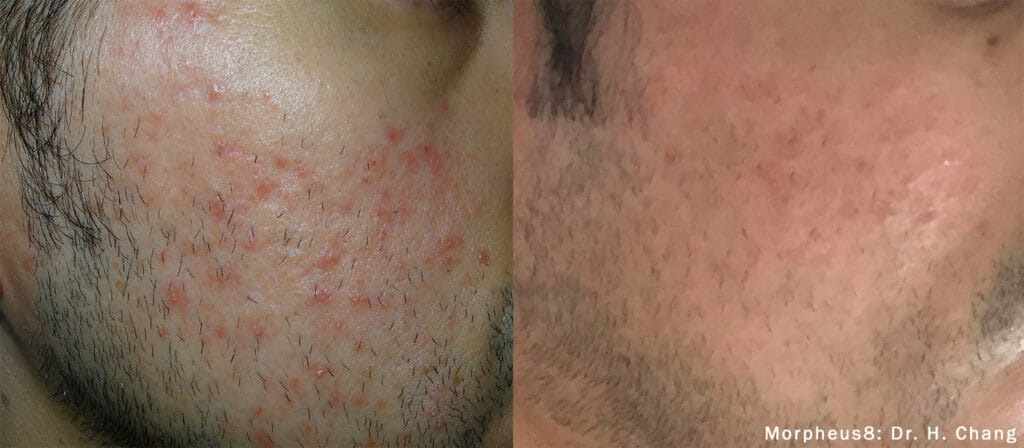 rf microneedling acne morpheus8