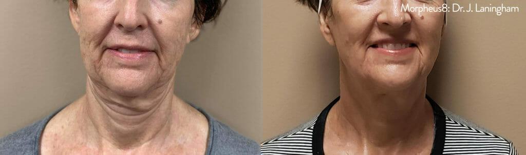 rf microneedling neck