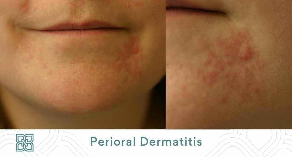 perioral dermatitis acne