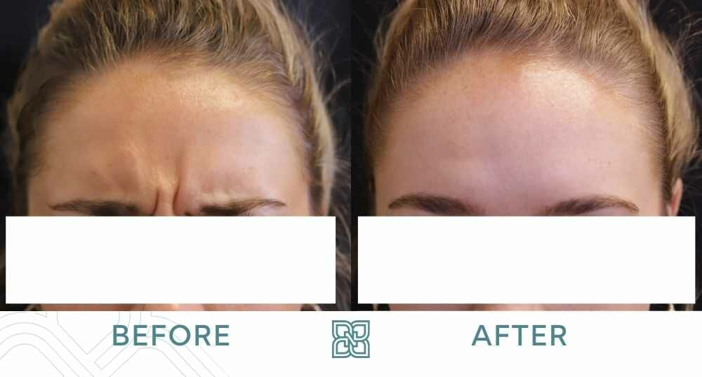 Botox Glabella Edmonton before and after