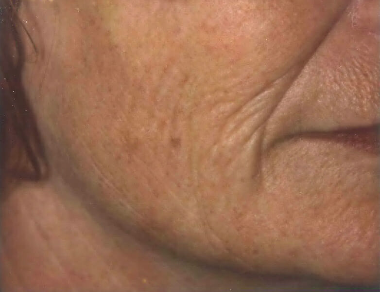 laser skin tightening before