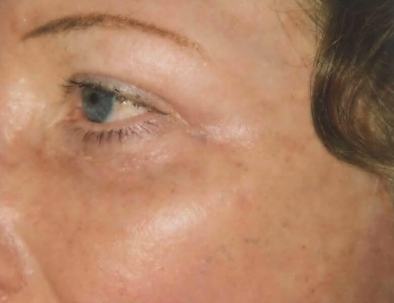 laser resurfacing eyes after edmonton