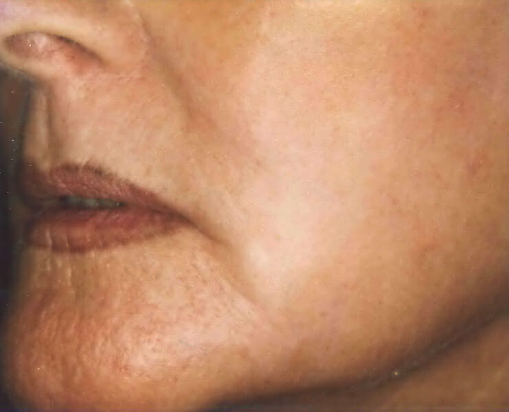 carbon dioxide laser resurfacing after