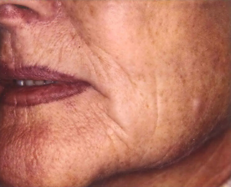 carbon dioxide laser resurfacing before