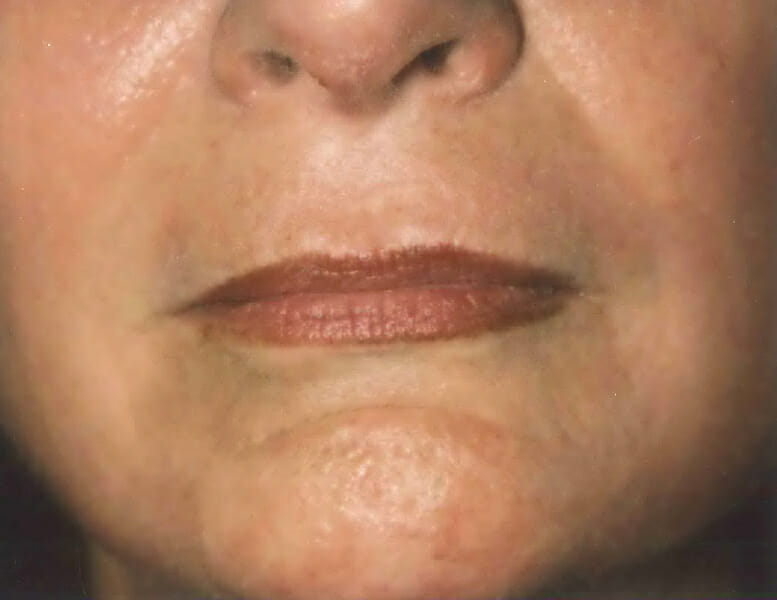laser resurfacing after edmonton