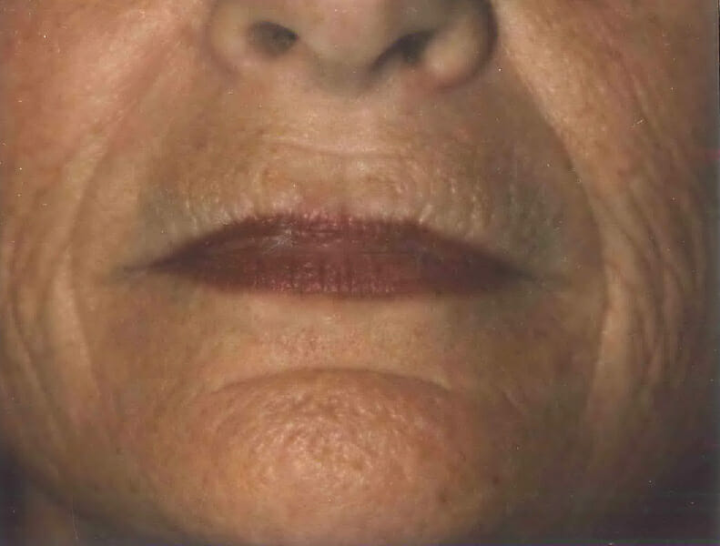 laser resurfacing before edmonton