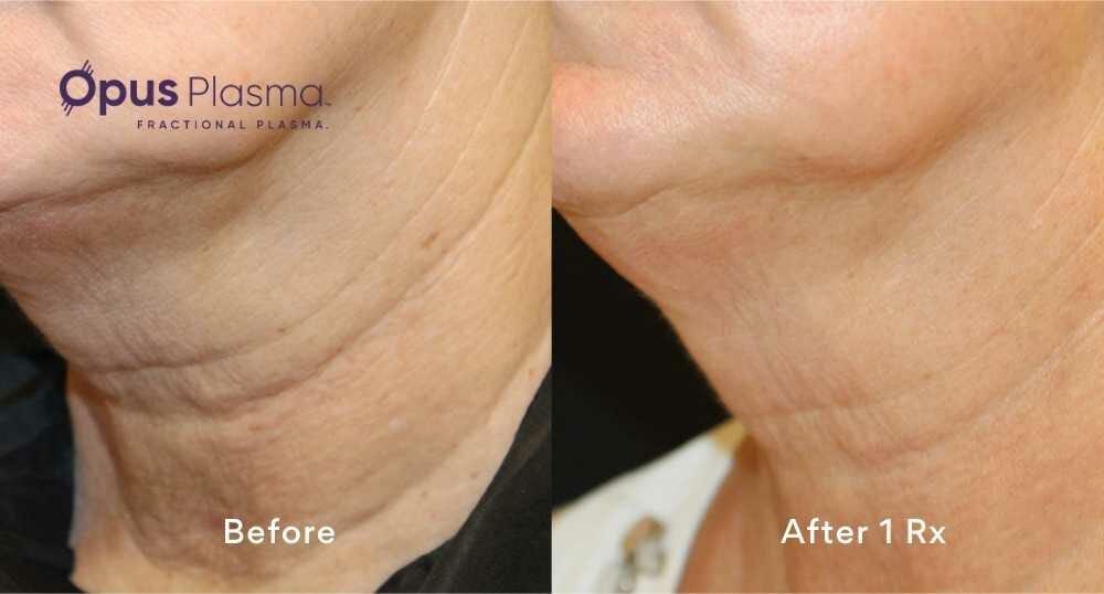 before and after neck rejuvenation edmonton