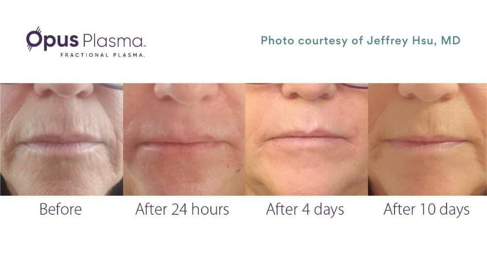 befroe and after photos of plasma resurfacing of the perioral wrinkles