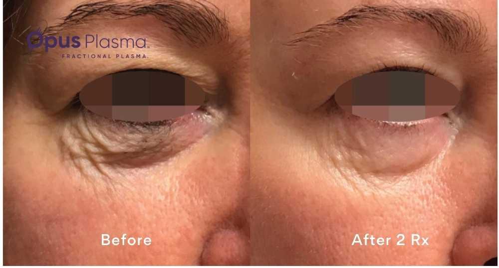 before and after photos of eyelid plasma resurfacing edmonton opus